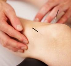 Akupunkturbeispiel Schwangerschaft